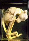 MacKenzie wet specimen - a kangaroo foetus