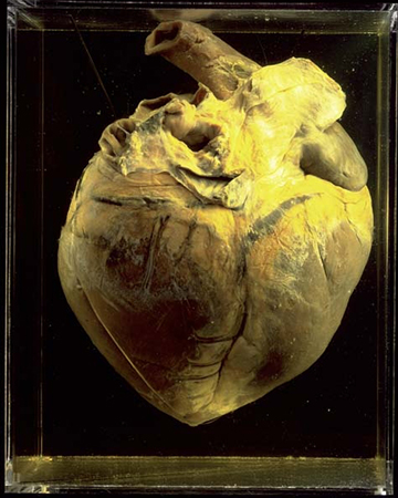 Phar Lap's heart displayed at the National Museum of Australia